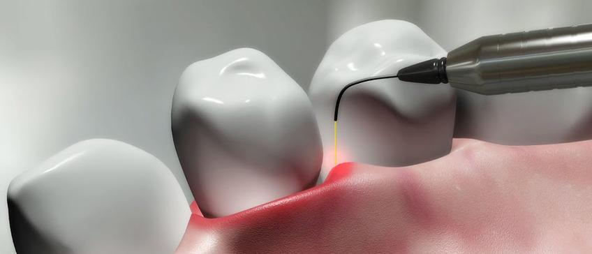 Parodontološka dijagnostika