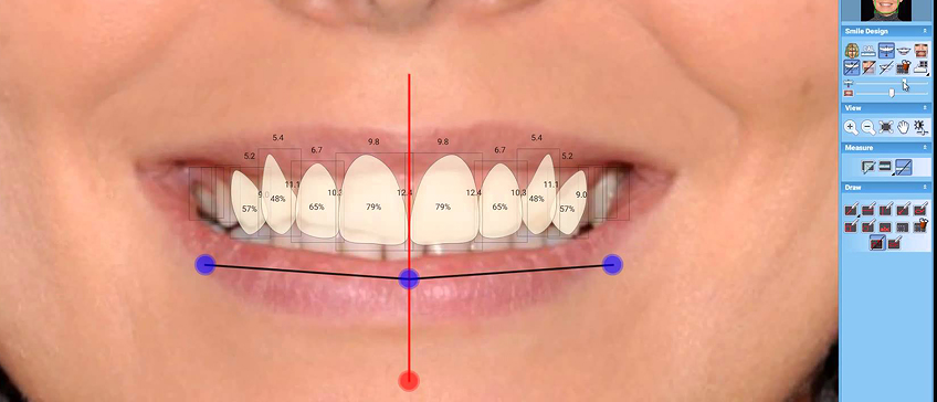 Planmeca Smile Design – system for planning a dream smile