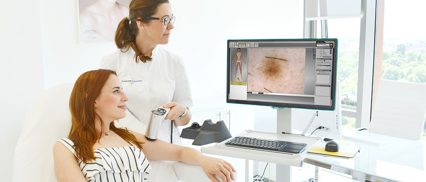 Pregled madeža s dermatoskopom