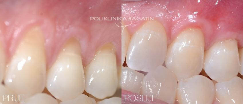 Prije i poslije tretmana