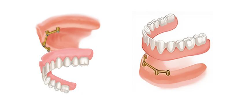 Proteza nad implantatima