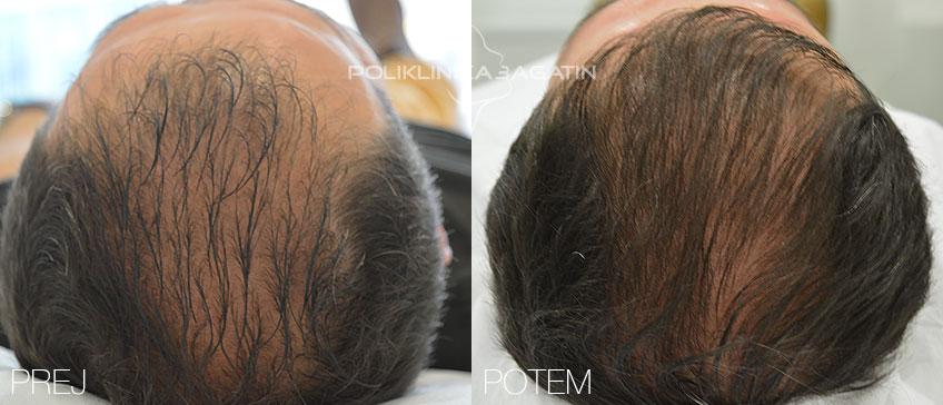 PRP terapija razredčenih las