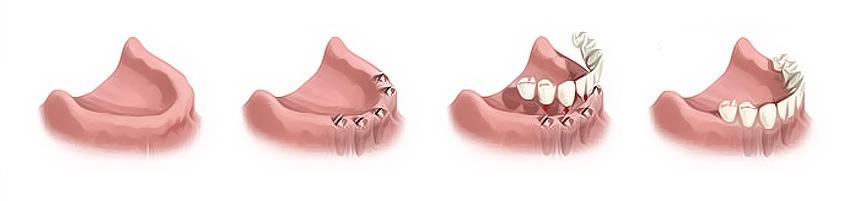 Semicircular bridge on implants