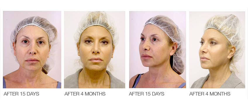 Silhouette Soft face lift threads