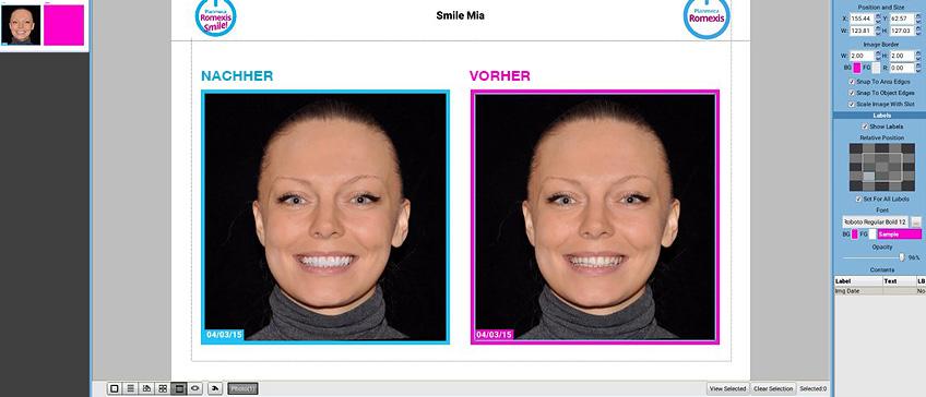 Smile Design digitale Lächelsimulation