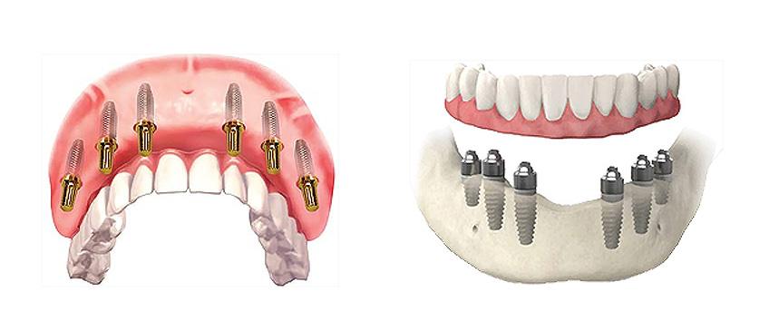 Types of teeth implants