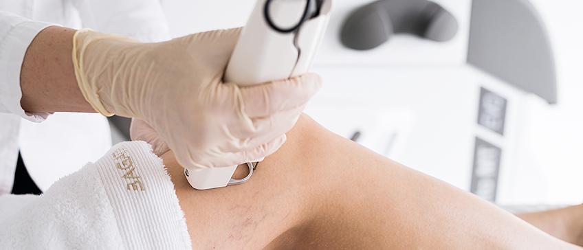 Lasersko uklanjanje vena i kapilara