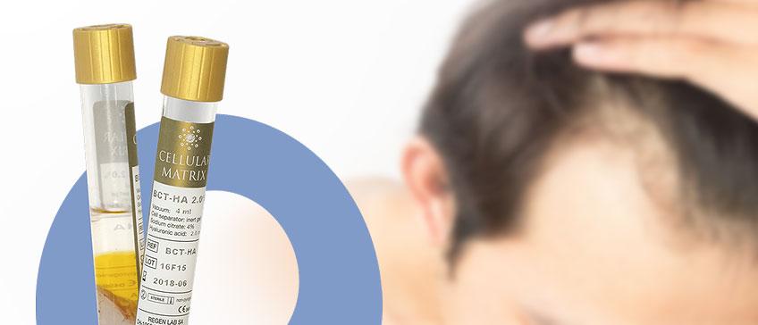 Ponovni rast kose uz PRP terapiju