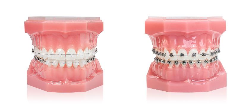 Damon ortodontski aparat