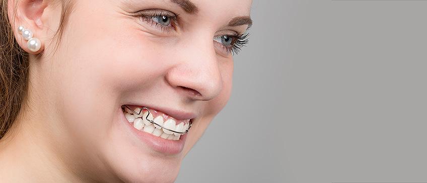 Mobilni aparatić za zube