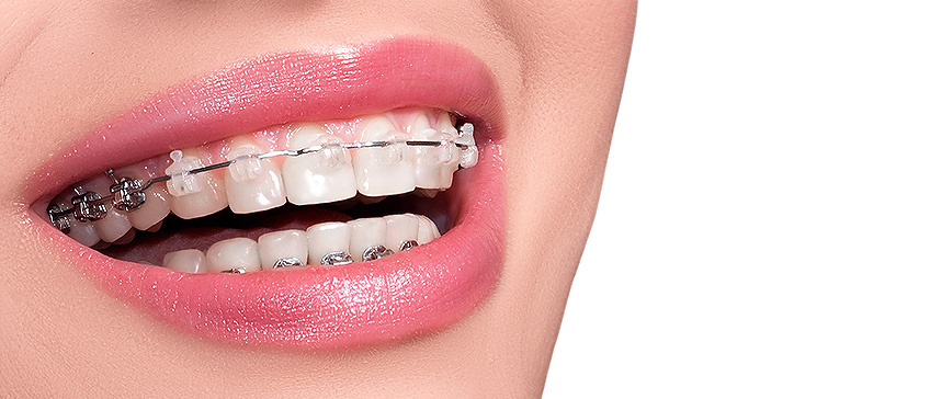 Ortodoncija novost