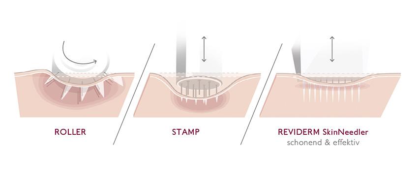 Reviderm Skin Needler