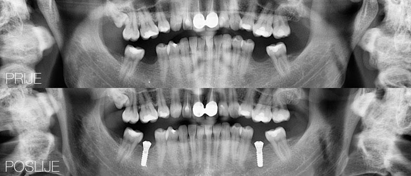 Ortopan prije i poslije