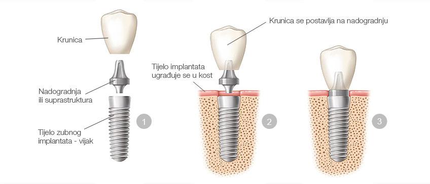 Ugradnja zubnog implantata