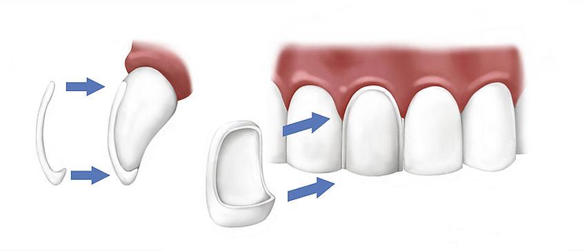 Zahnschalen - Veneers