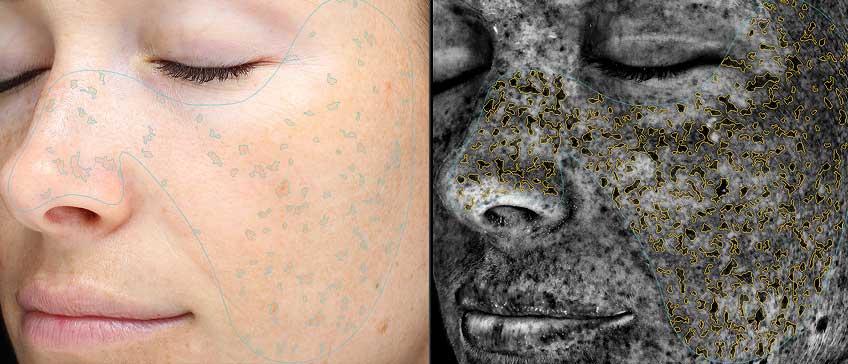 VISIA Profi analiza kože na obrazu