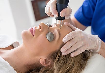 Frakcijski skin resurfacing - uklanjanje bora i ožiljaka od akni