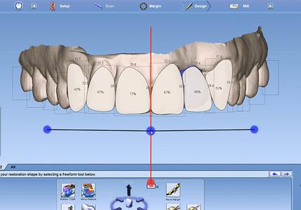 Smile Design digitalna simulacija osmijeha