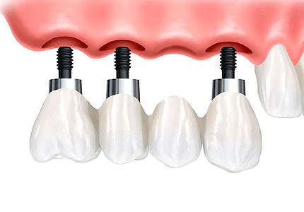 Zubni implantat rješenje za izgubljen zub