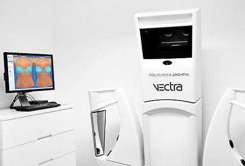 Još naprednije VECTRA 3D konzultacije
