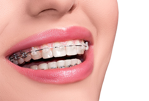 Orthodontics – the newest addition to our Dental center