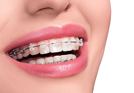Ortodoncija – nova specijalizacija našeg Dental centra