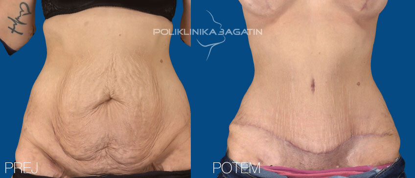 Abdominoplastika 1 SLO
