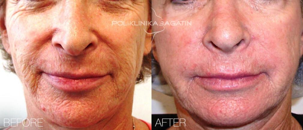 stem cell beauty treatment