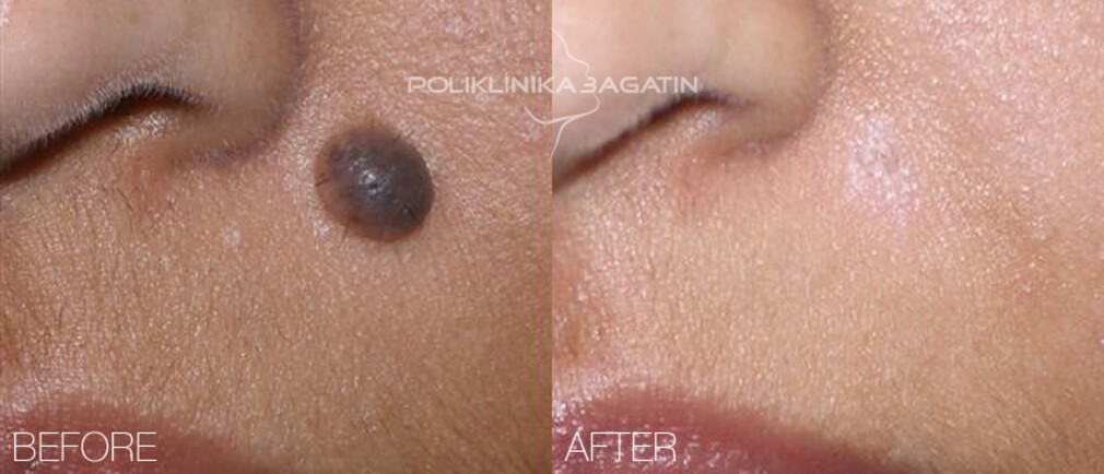 Radiofrequency removal of moles and other changes