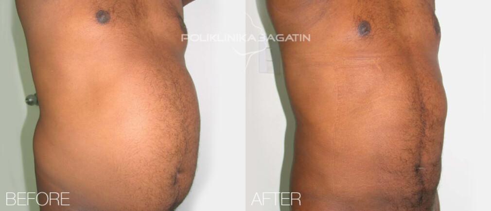 VASER Lipo ultrasound liposuction