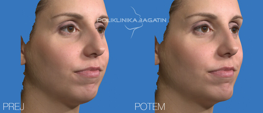 VECTRA 3D svetovanja za nos 1 SLO