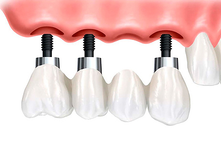 Types of teeth implants